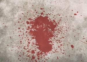 Giusy Versace - Con la testa e con il cuore - L'incidente - uym